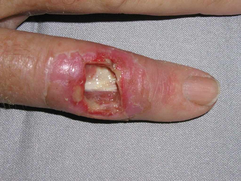 MRSA Pictures: MRSA Skin Infection Symptoms - WebMD