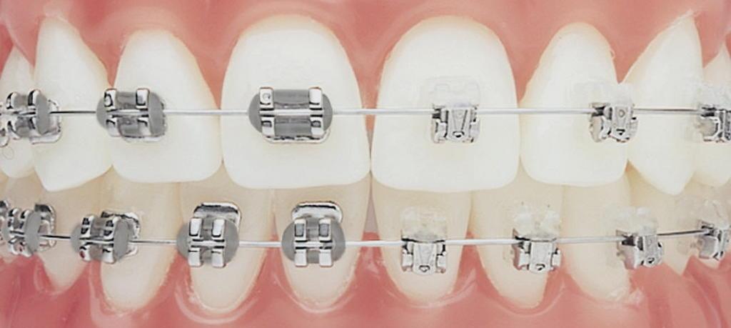 Blog de marco personaliza tu tratamiento de ortodoncia - Como alinear los dientes en casa sin brackets ...