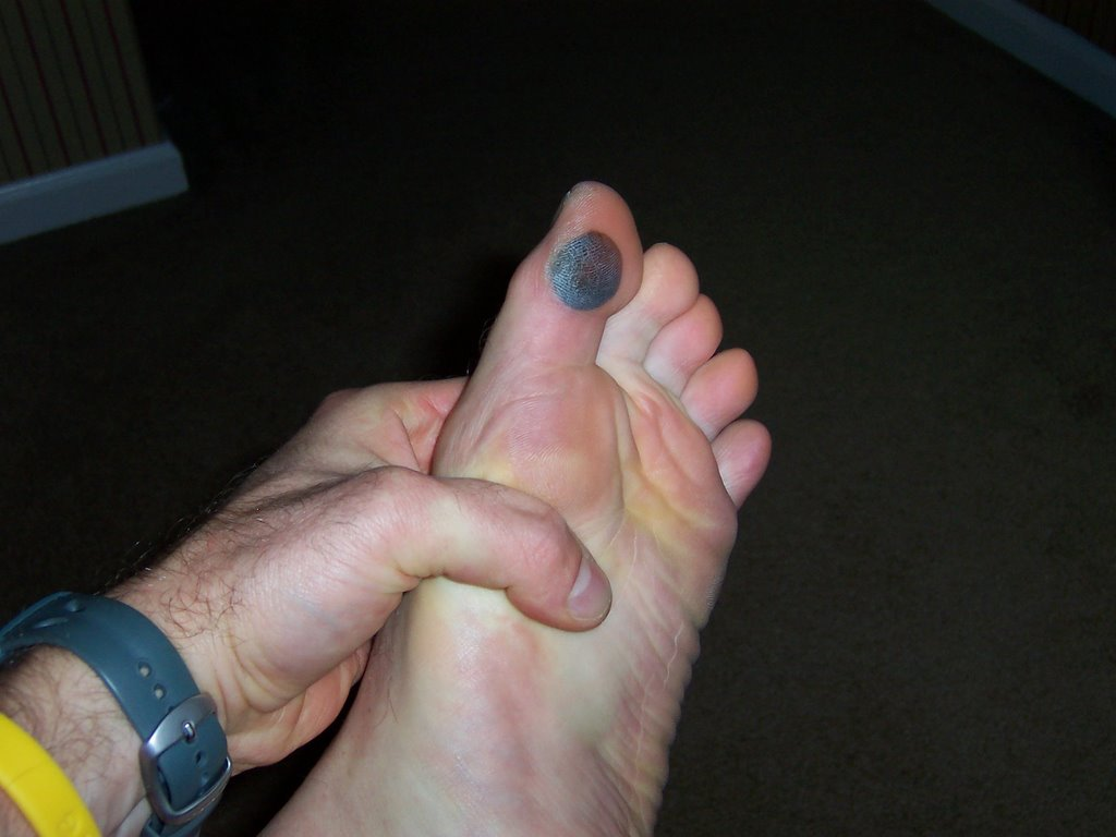 how to get rid of blood clot in toenail