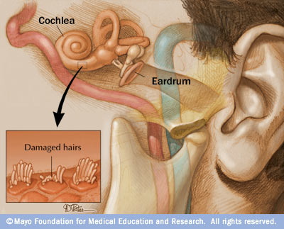 Choshvei shemo bands loud music and torah law dont above a diagram of the inner ear including the cochlea when the hairs in the cochlea are damaged there is no way to reverse the damage hearing loss is ccuart Images