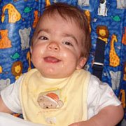 Forever Mighty Max: What Is Hurler Syndrome?