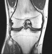 This is not theWife's knee