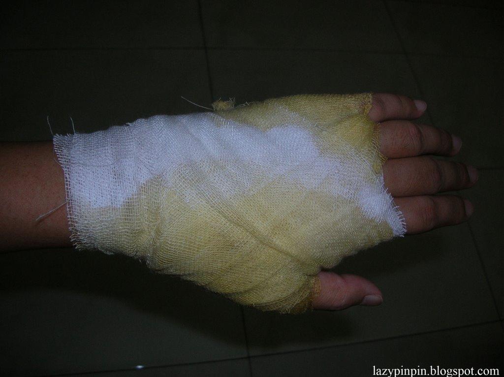 Cogito ergo scribo: Sprain of my left hand