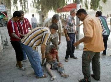 Passers by try to help a child injured in one of this morning's bomb attacks in Baghdad