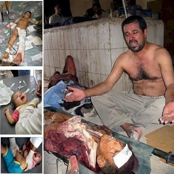 Composite graphic showing dead and wounded children