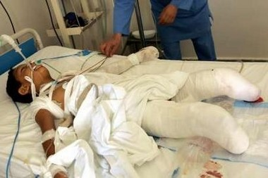 11 YO Muhamed Sameer Moussa was wounded in an Israeli air strike his legs had to be amputated