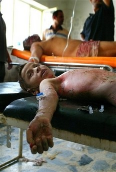 This boy shown in Baqouba hospital was injured by a mortar attack August 22nd 2006