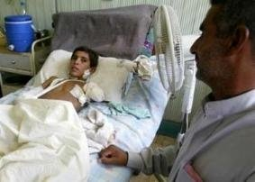 Child in Hila hospital after having had both arms blown off