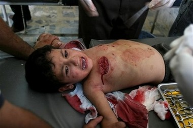 Child wounded mortar attack baquba August 31st 2006
