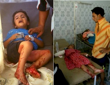 Two children wounded by a mortar shell that fell on their home Baquoba Iraq September 2nd 2006
