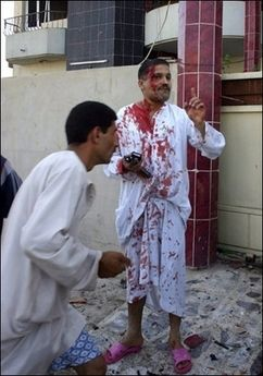 A man injured in the attack on the Turkmen Front Party Office in Kirkuk gestures for help