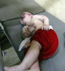 The baby in this photograph was wounded in yesterday's rocket attacks on al-Amin