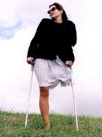 Lepa žena bez leve noge hoda sa štakama