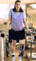 Ana Člomski vežba sa protezom noge