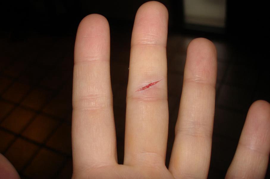 материал к чему мелкие порезы пальцев рук термобелье входит отдельную