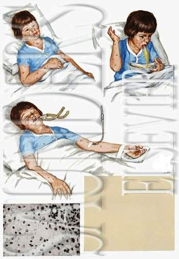 reye syndrome Reye's syndrome is a potentially fatal disease that can cause damage to many  organs, including the brain and liver it is associated with aspirin consumption by .