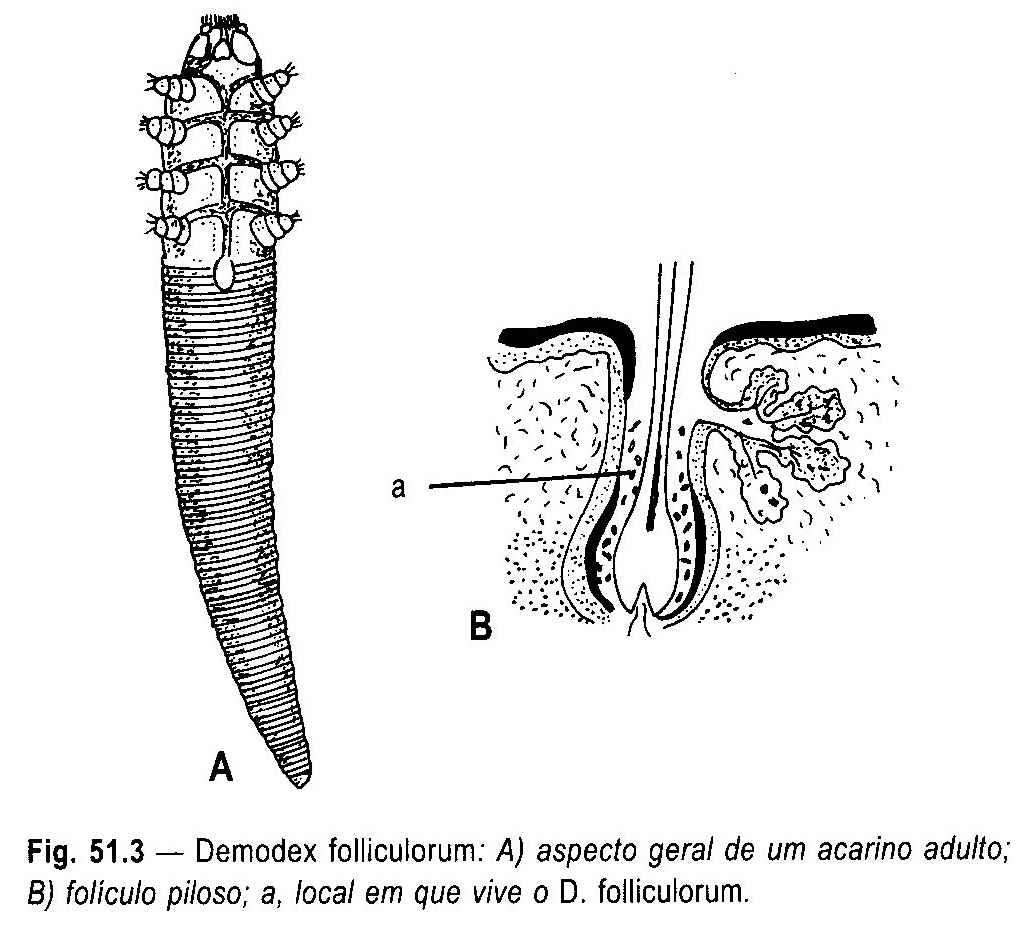Os parasitas da pessoa influem em um fígado