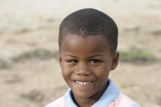 Tyrone Prior To His Eye Surgery
