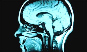 Meditar incrementa el tamaño del cerebro