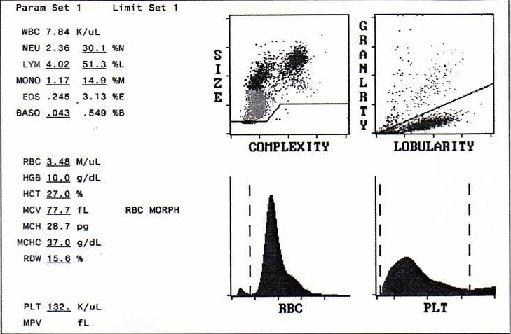 case study on cerebral malaria