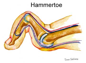 how to fix a flexible hammer toe