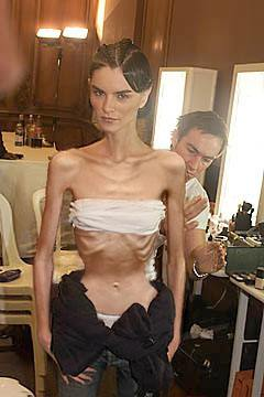 skinny fashion model