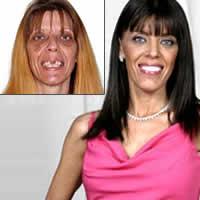 zombie gets head transplant