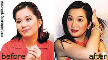 Before and After of Filipino Celebrities, Retokado and ...