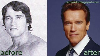 Arnold Swarzenager Picture Plastic Surgery