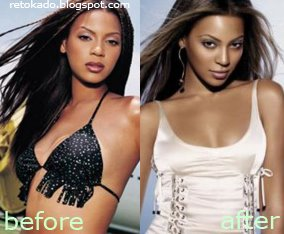 Beonce Knowles Pictures Before and After Plastic Surgery