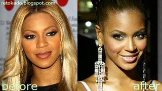 Beyonce Knowles Pictures Before and After Plastic Surgery