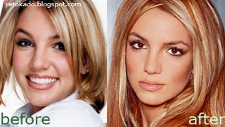 Britney Spears Pictures Before and After Photos Nose job