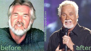 Kenny Rogers Picture Before and After Plastic Surgery