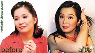 Kris Aquino Pictures James Yap