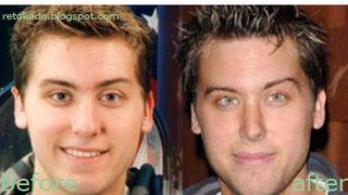 Lance Bass Gay and Nose Plastic