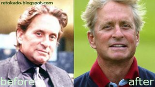 Michael Douglas' Before and After Plastic Surgery Picture