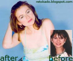 Rosanna Roces Before and After Pics