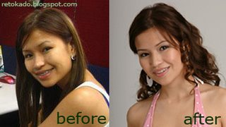 PBB Say Alonzo Picture Before and After Rhinoplasty Plastic Surgery