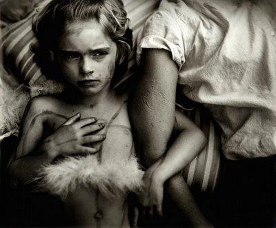 Sally Mann [n. 1951] | Jessie Bites [1985]