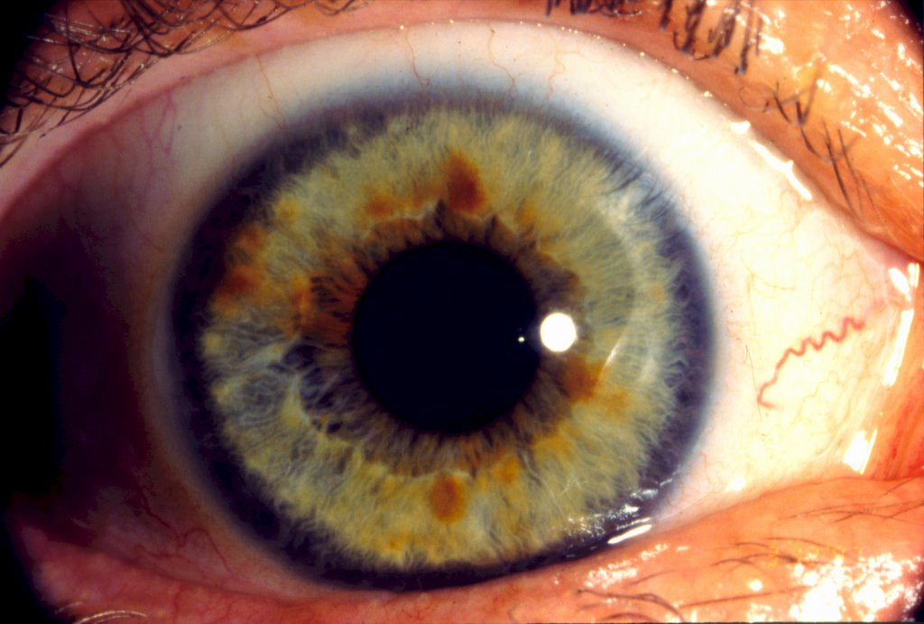 iridology nutrition and cognition research chlorine and