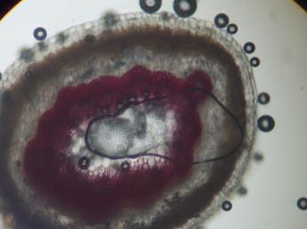 Bacteria Doin the jig!