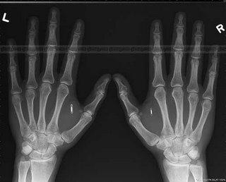 Amal Graafstr's RFID implanted hands