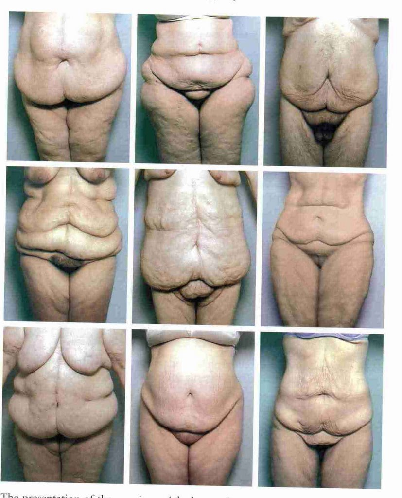 Plastic Surgery 101 The New Post Bariatric World