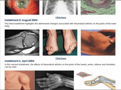 Rheumatology Atlas