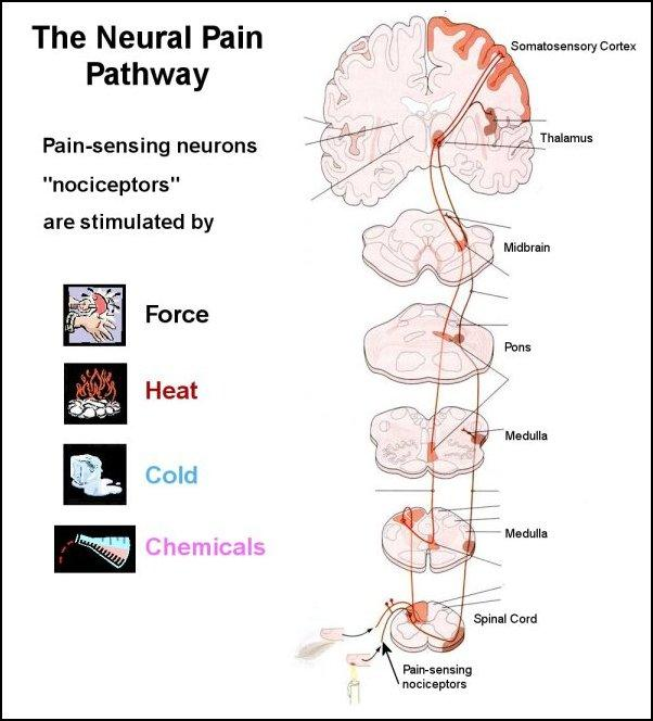 Does Pain Serve Purpose on headache location diagram