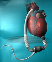 HeartMateII - A continuous flow cardiac assist device.