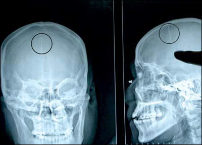 X-Ray of the head