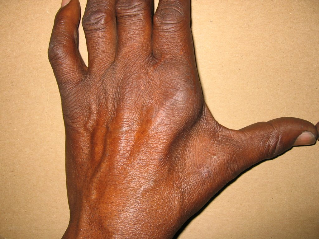 steroid cause of skin atrophy