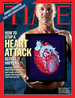 Heart disease prevention: Call me when you're having chest pain