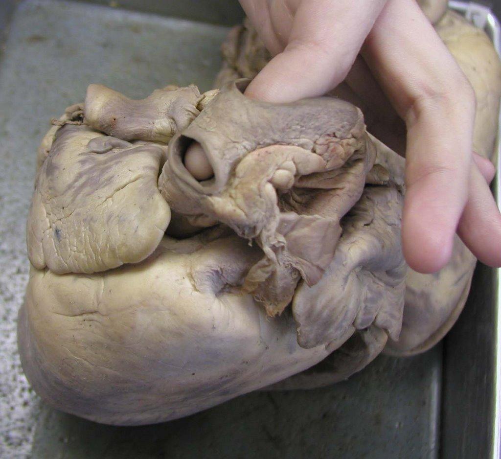Human Anatomy & Physiology class at University of Louisiana: Cow ...